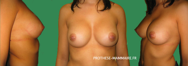 prothese mammaire en silicone photo