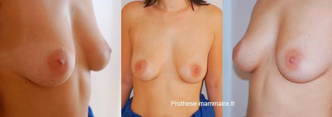 Réparer les mamelons inversés sans chirurgie